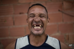 In this May 9, 2014 photo, former drug user Renato Souza, 44, smiles for the camera at the God's Love rehabilitation center in Rio de Janeiro, Brazil. (AP Photo/Felipe Dana)
