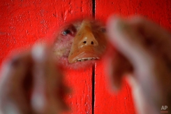 """In this March 3, 2014 photo, Djalma Antonio Jardim, who has a rare inherited skin disease known as xeroderma pigmentosum, or """"XP,"""" looks in a a mirror at his home in the Araras community of Brazil's Goias state. In an effort to camouflage how the disease has eaten away the skin on his lips, nose, cheeks and eyes, Jardim wears a rudimentary orange-tinted mask, its stenciled-in right eyebrow not matching his bushy real one that remains. (AP Photo/Eraldo Peres)"""