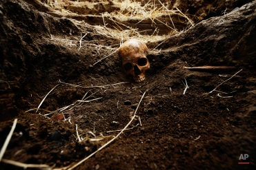 In this photo taken on July 19, 2014, the skull of Perfecto de Dios killed in 1950 at the age of 19 is partially visible during his exhumation from a hidden grave in Chaherrero, Spain. (AP Photo/Daniel Ochoa de Olza)