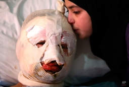 Fatima, 13, weeps as she kisses her injured father, Ahmad al-Messmar, 40, who was wounded when a deadly car bomb blew up near a gas station, in the predominately Shiite town of Hermel, about 10 miles (16 kilometers) from the Syrian border in northeast Lebanon, Sunday, Feb. 2, 2014. A shadowy Lebanese Sunni extremist group claimed responsibility for a suicide car bombing in Hermel, a stronghold of Lebanon's militant Hezbollah group, that killed several people in the latest attack linked to the war in neighboring Syria. (AP Photo/Hussein Malla)