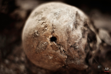 In this photo taken on July 24, 2014, according to forensic experts, shows a bullet hole on a skull on an excavation during a search for the remains of those killed by their political ideology during and after the Spanish civil war in El Estepar, Spain. (AP Photo/Daniel Ochoa de Olza)