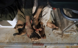 The bloodstain feet of militants killed by security forces in an operation are seen in an ambulance in Peshawar, Pakistan, Saturday, Dec. 20, 2014. (AP Photo/Mohammad Sajjad)