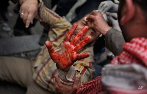 A wounded anti-government protester holds up his bloodied hand as he is carried by others back from clashes with pro-government supporters near the Egyptian Museum in downtown Cairo, Egypt, Thursday, Feb. 3, 2011. (AP Photo/Ben Curtis)