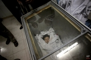 Palestinians gather around the lifeless body of Raghad Masoud, 34 months, who was killed in an Israeli strike, after she was laid in a freezer as the hospital morgue was full at Rafah refugee camp, in southern Gaza Strip, Aug. 4, 2014. (AP Photo/Khalil Hamra)