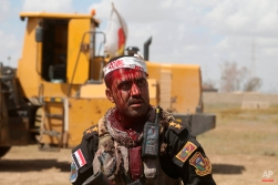 An injured Iraqi officer waits for treatment on the frontline during clashes with Islamic State extremists in Tikrit, 80 miles (130 kilometers) north of Baghdad, Iraq, Tuesday, March 31, 2015. (AP Photo/Khalid Mohammed)