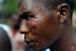 Jafeh Hakizimana shows his wounds in the rural Bujumbura village of Kamesa, Burundi, Monday, May 18, 2015. Hakizimana is one of three wounded overnight during an attack of his village by Imbonerakure pro-government militias. In Bujubura, the army has been deployed throughout the town as hundreds returned to the streets Monday to protest the president's decision to seek a third term. ( AP Photo/Jerome Delay)