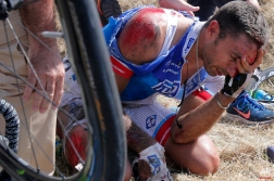 William Bonnet of France holds his head after crashing with scores of other riders during the third stage of the Tour de France cycling race over 159.5 kilometers (99.1 miles) with start in Antwerp and finish in Huy, Belgium, Monday, July 6, 2015. Bonnet abandoned the race following the crash. (AP Photo/Christophe Ena)