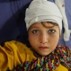 A girl injured from an earthquake admits at a local hospital in Peshawar, Pakistan, Monday, Oct. 26, 2015. A powerful 7.7-magnitude earthquake in northern Afghanistan rocked cities across South Asia. Strong tremors were felt in Kabul, New Delhi and Islamabad on Monday. In the Pakistani capital, walls swayed back and forth and people poured out of office buildings in a panic, reciting verses from the Quran. (AP Photo/Mohammad Sajjad)
