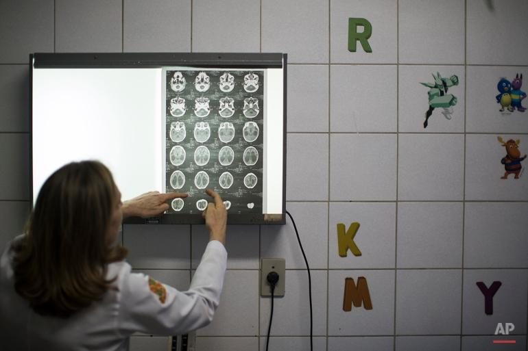 Doctor Angela Rocha shows brain scans of a baby born with microcephaly at the Oswaldo Cruz Hospital in Recife, Brazil, Thursday, Jan. 28, 2016. (AP Photo/Felipe Dana)