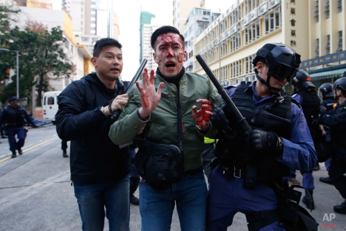A rioter is taken away by police on a street in Mongkok district of Hong Kong, Tuesday, Feb. 9, 2016. Rioters clashed with police overnight and into the early hours of Tuesday in a crowded area of Kowloon. The unrest started when local authorities tried to prevent street food sellers from operating on Monday night. Activists who are dissatisfied with Hong Kong's administration took part in the clashes, local media reports said. (AP Photo/Kin Cheung)
