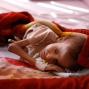 A malnourished child lies in a bed waiting to receive treatment at a therapeutic feeding center in a hospital in Sanaa, Yemen, Sunday, Jan. 24, 2016. This child is one of millions of people across countries like Syria, Yemen and Iraq gripped by hunger, struggling to survive with little help from the outside world. (AP Photo/Hani Mohammed)