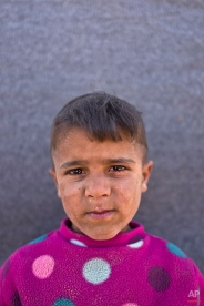 """In this Friday, March 11, 2016 photo, Syrian refugee boy Omar Suliman, 5, from Hassakeh, Syria, poses for a picture at an informal tented settlement near the Syrian border on the outskirts of Mafraq, Jordan. """" I want to grow up"""" Omar said. About half of the 4.8 million Syrians who fled their homeland are children, and some of the most vulnerable live in dozens of makeshift tent camps, including Jordan, which has taken in close to 640,000 refugees. (AP Photo/Muhammed Muheisen)"""