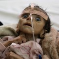 Infant Udai Faisal, who is suffering from acute malnutrition, is hospitalized at Al-Sabeen Hospital in Sanaa, Yemen, Tuesday, March 22, 2016. Udai died on March 24. Hunger has been the most horrific consequence of Yemen's conflict and has spiraled since Saudi Arabia and its allies, backed by the U.S., launched a campaign of airstrikes and a naval blockade a year ago. (AP Photo/Maad al-Zikry)