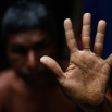 In this April 1, 2016 photo, Bangladeshi man Shukkur Ali, 58, shows his palm, filled with warts caused by years of drinking arsenic-tainted water, at his village in Sonargaon, outskirts of Dhaka. A new report estimates that some 20 million Bangladeshis are still being poisoned by arsenic-tainted groundwater drawn from government wells. That number remains unchanged from 10 years ago, despite years of action to dig new wells. (AP Photo/A.M. Ahad)